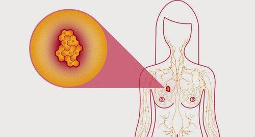 Núm vú của nhiều người đều giống nhau nhưng không có nhiều trường hợp nó bị thụt vào bên trong. Nếu bạn đột nhiên có hiện tượng này thì nhất định phải kiểm tra ngay để được chẩn đoán sớm. (Ảnh minh họa)